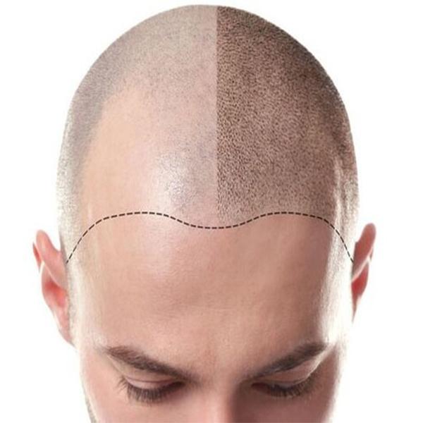 کاشت مو ترکیبی