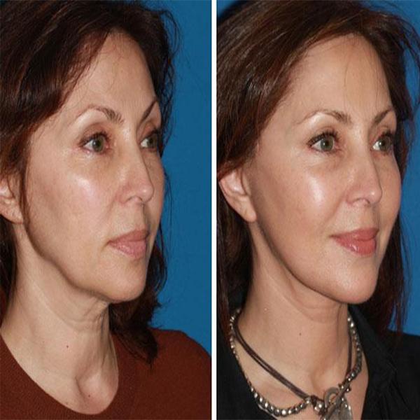 مراقبتهای قبل و بعد از تزریق چربی صورت