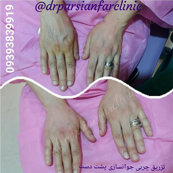 مراقبتهای قبل و بعد از تزریق چربی دست