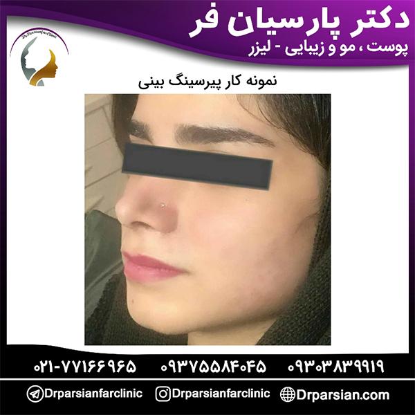 پیرسینگ برای بینی
