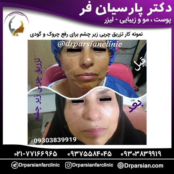 تزریق چربی زیر چشم برای رفع چروک و گودی