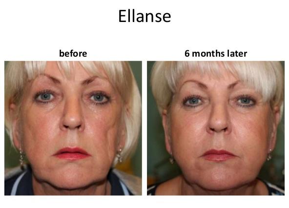 تزریق فیلر Ellanse در صورت
