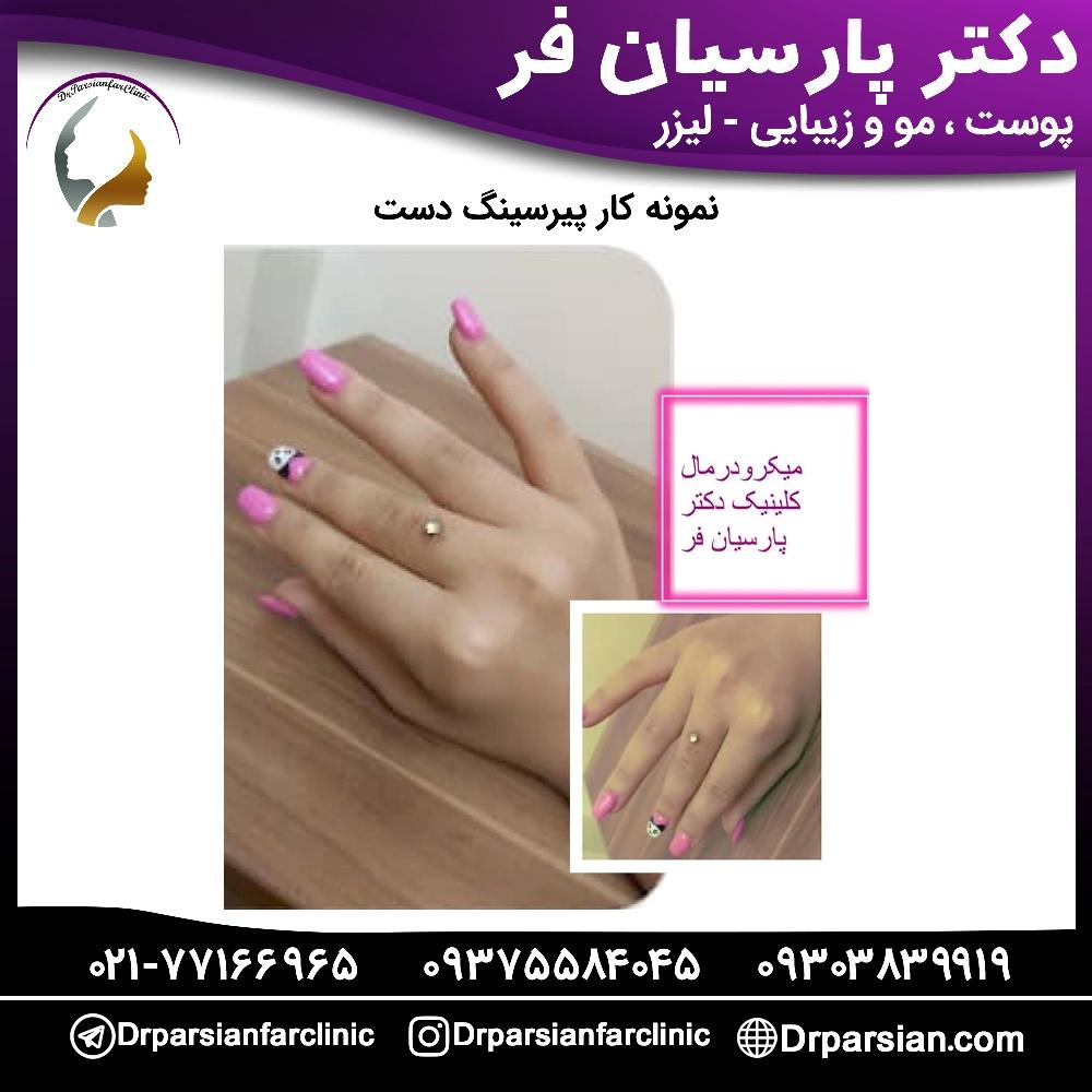 پیرسینگ دست