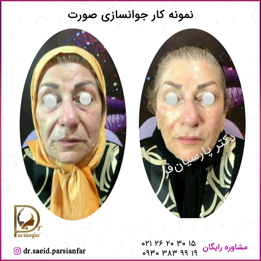 نمونه کار جوانسازی صورت