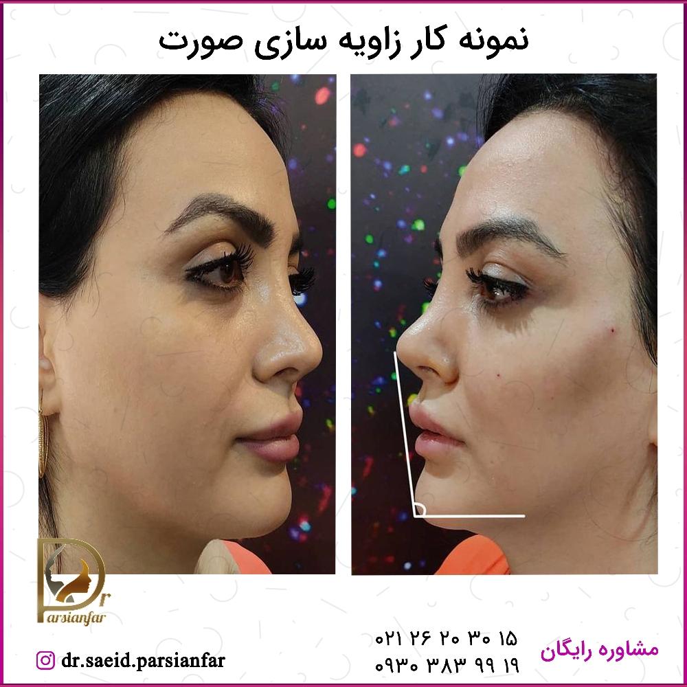 زاویه سازی صورت با تزریق چربی