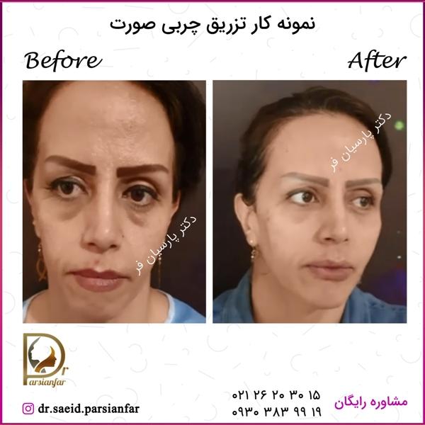 نمونه کار تزریق چربی صورت