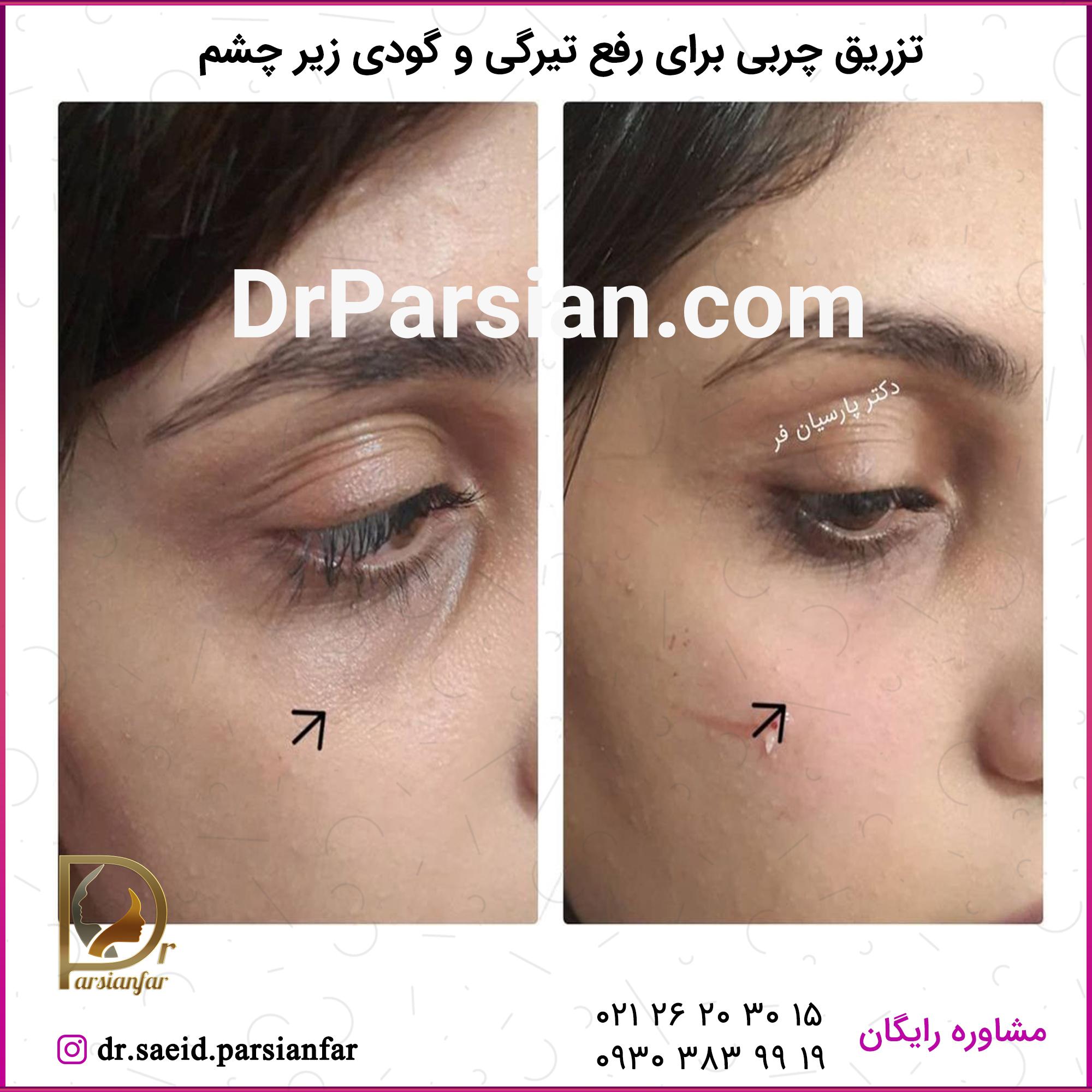 تزریق چربی برای رفع تیرگی و گودی زیر چشم