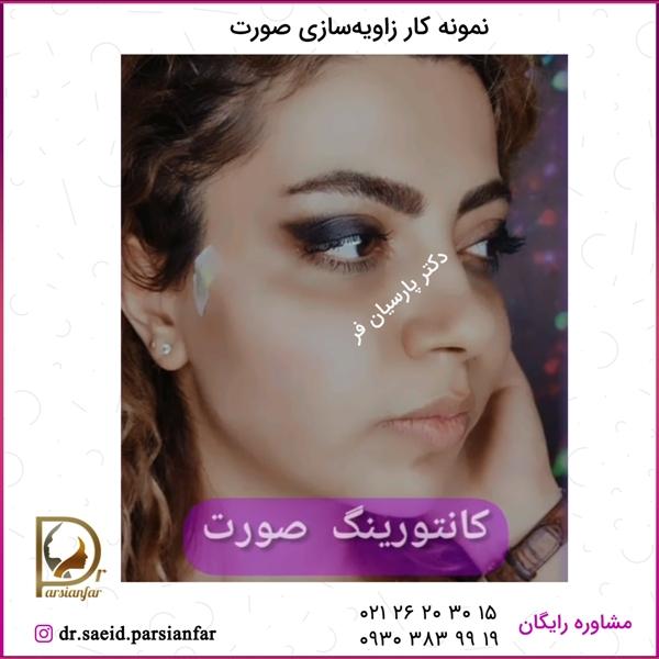 نمونه کار زاویهسازی صورت