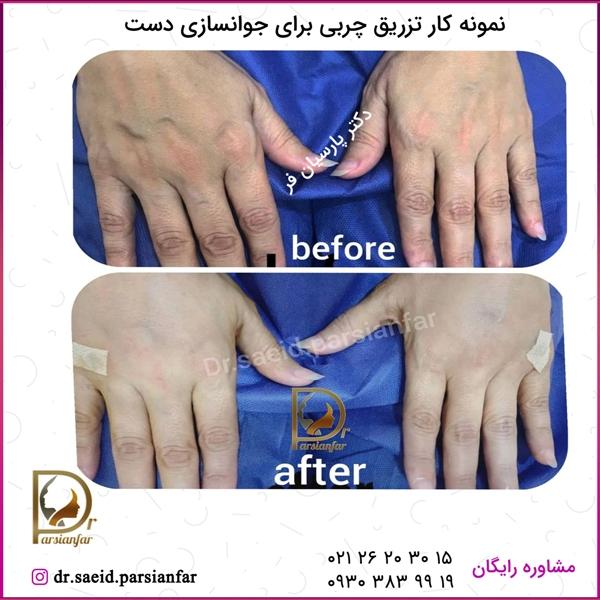تزریق چربی برای جوانسازی دست