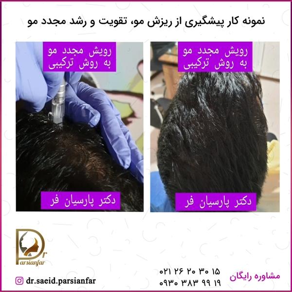 جلوگیری از ریزش مو و رویش مجدد مو
