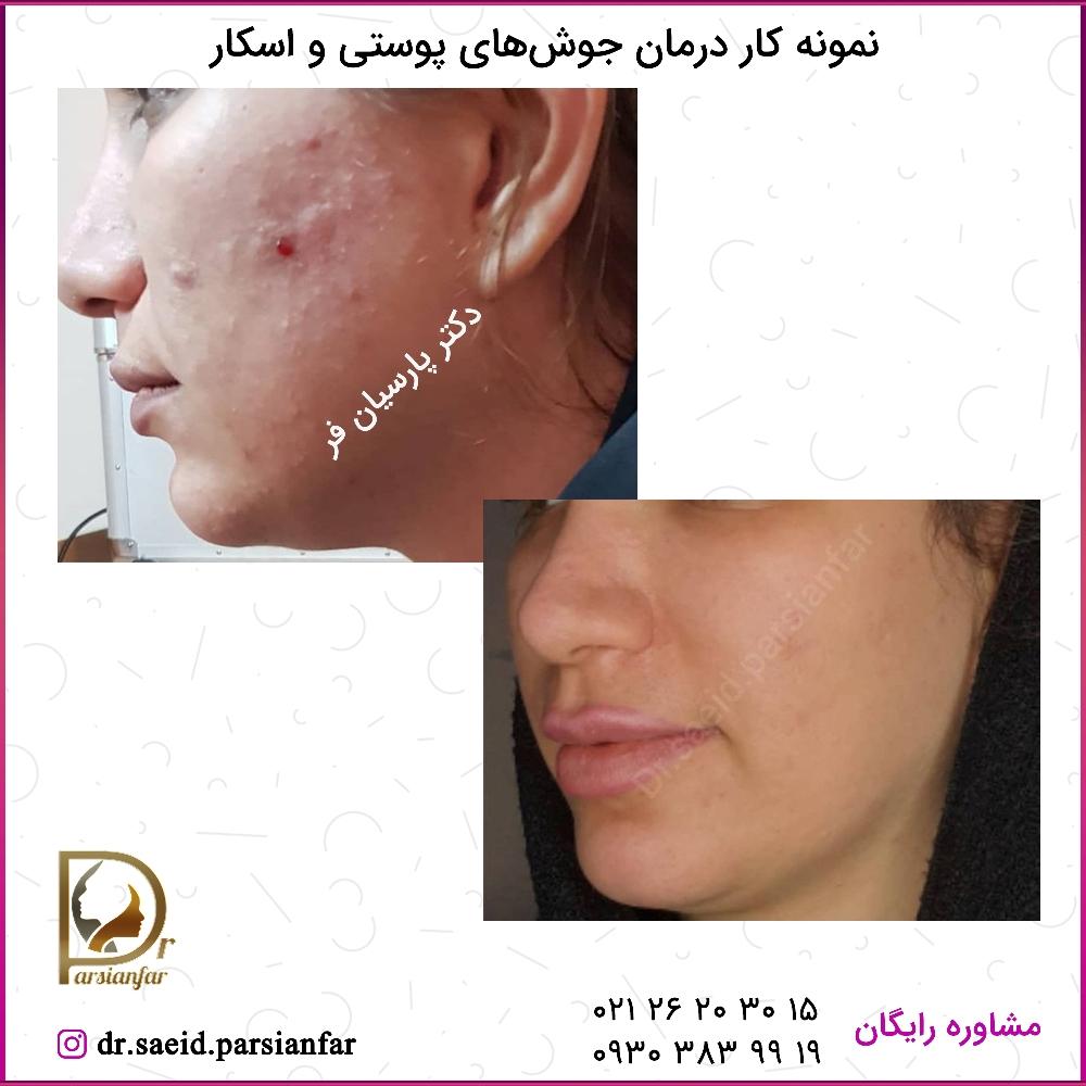 درمان جوشهای پوستی و اسکار