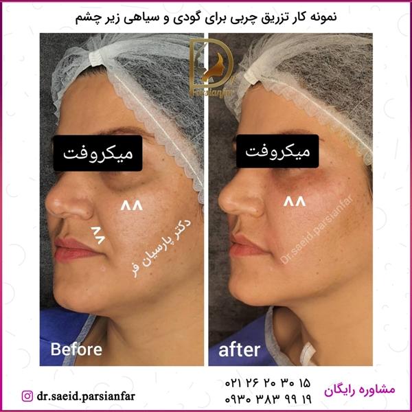 تزریق چربی برای گودی و سیاهی زیر چشم