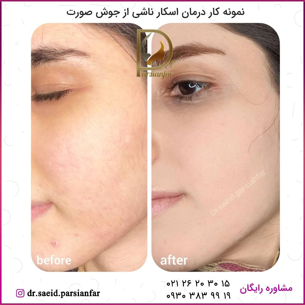 درمان اسکار جوش صورت